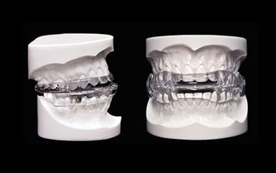 Side by side comparison of a oral appliance